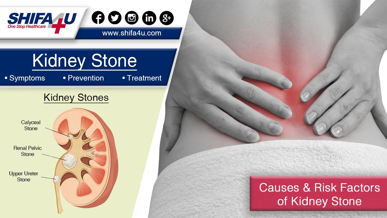 Kidney Stone Treatment Symptoms Prevention