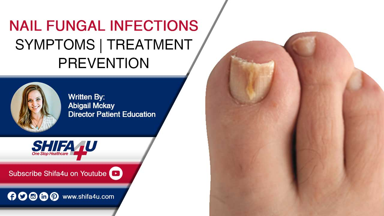 Nail Fungal Infections Symptoms Treatment Prevention